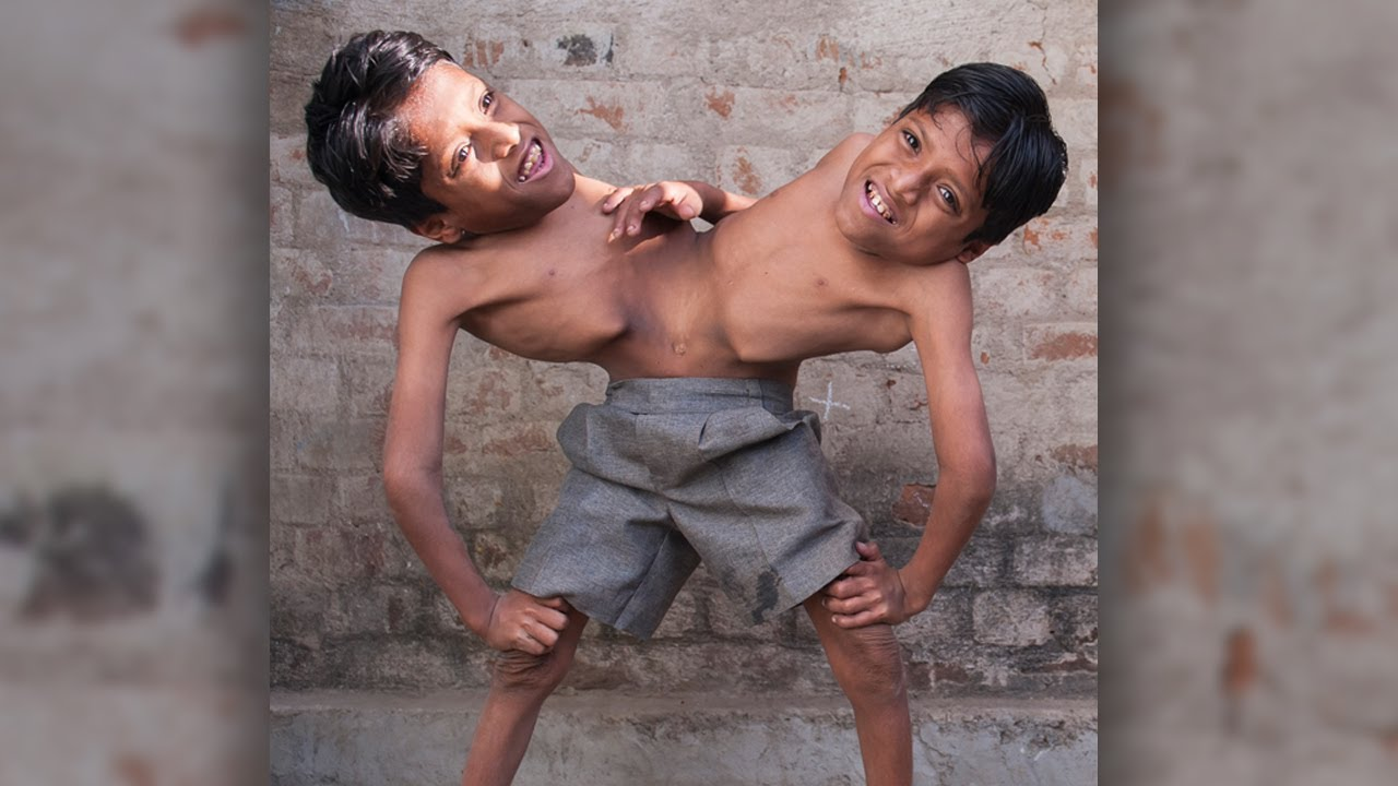 Inspirational Story Of Conjoined Twins Shivanath And Shivram Sahu Will Bring You To Tears