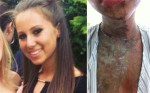 Acid attack victims - The faces of courage stills